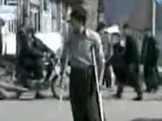 男と松葉杖